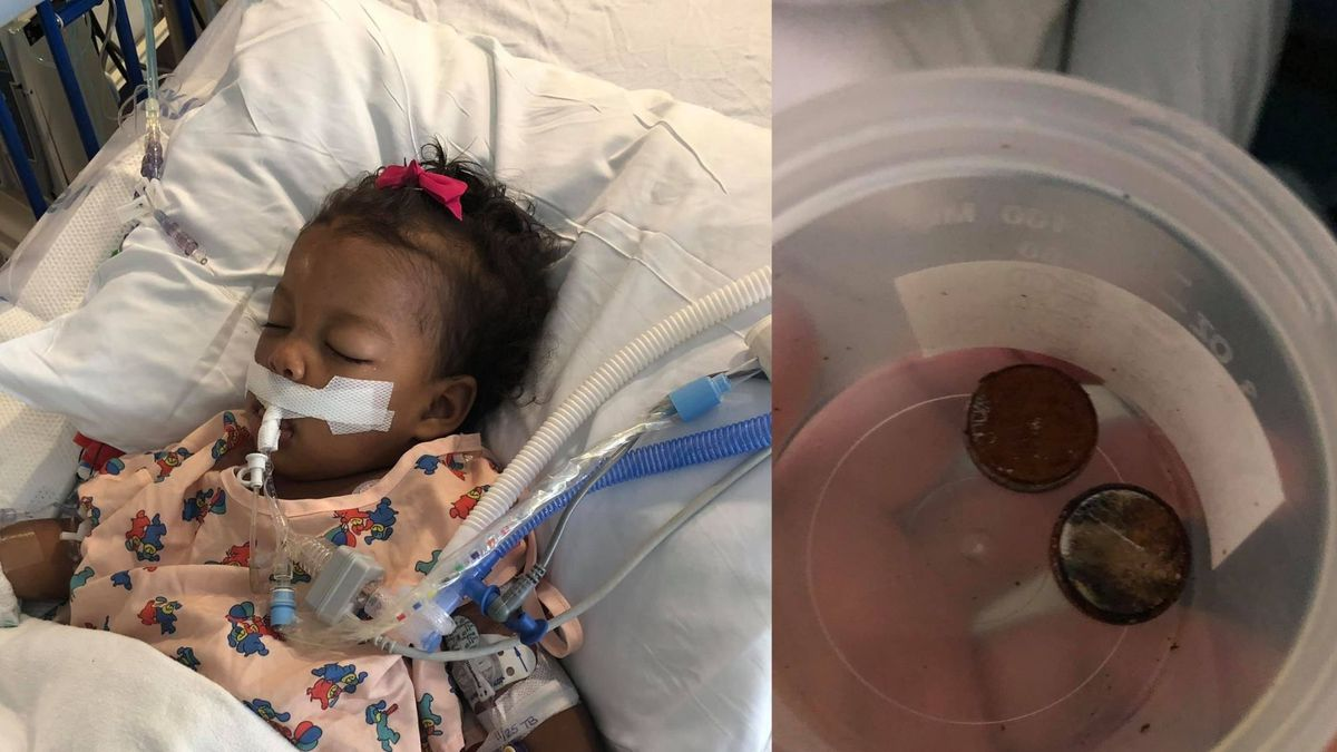 Atlanta toddler fighting for life after swallowing button batteries